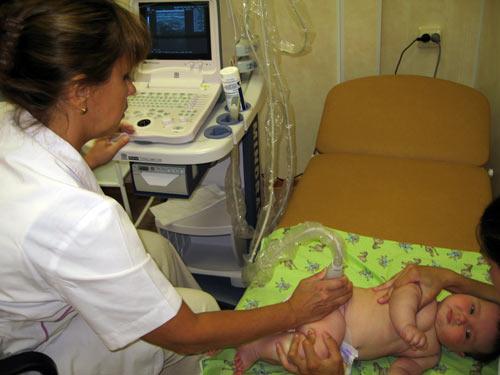 Врожденная дисплазия у ребенка