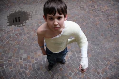 Зима, дети, переломы – как лечить и куда обращаться