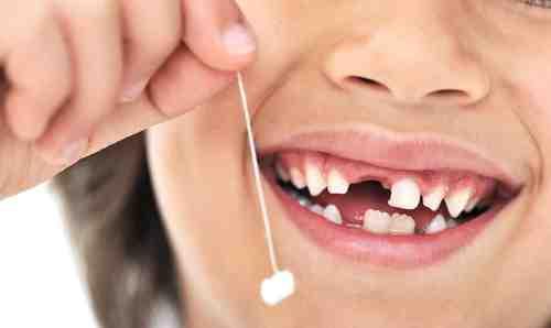 Молочные зубы - нужны ли уход и лечение?