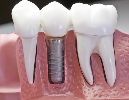 Вставные зубы теперь модно называются импланты